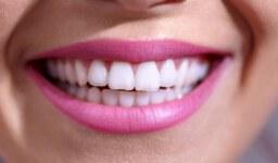 הכל על השתלות שיניים: עובדות שיפילו לכם את הלסת