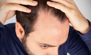 כל מה ששאלתם את המומחים שלנו על נשירת שיער