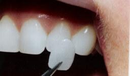 כל מה שאתם צריכים לדעת על ציפוי  שיניים
